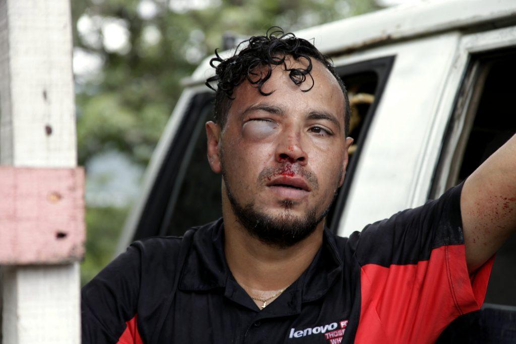 El arbitro Marvin Maradiaga luego de ser agredido violentamente por jugadores del Cruz Azul
